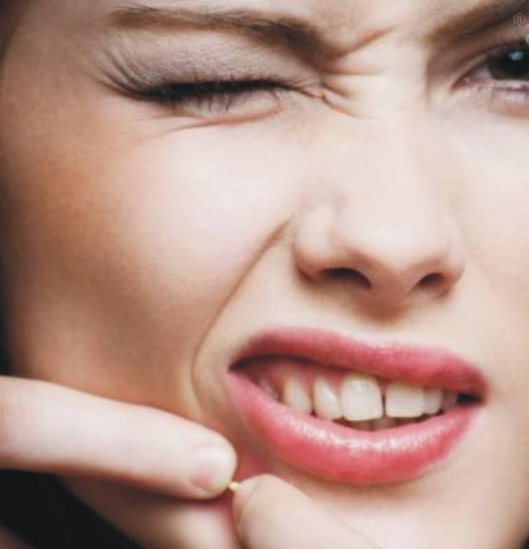 Consejos contra el acne
