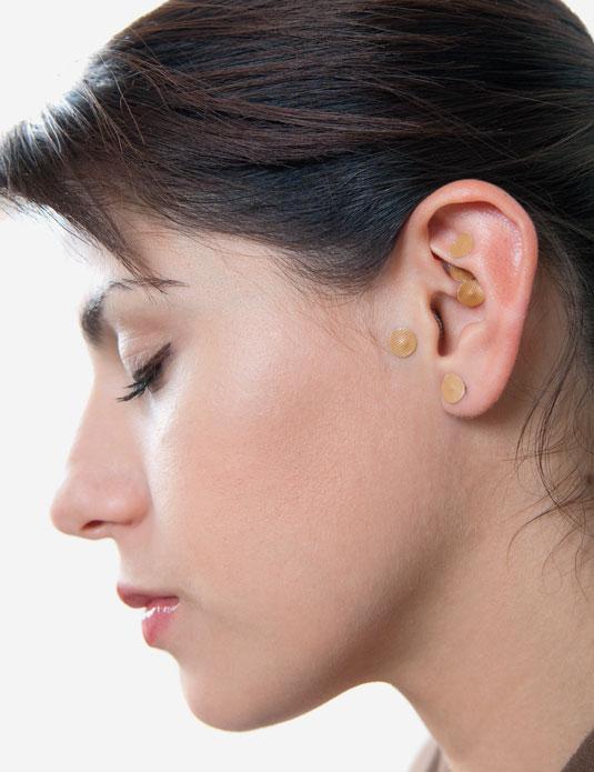 Qué es la auriculoterapia