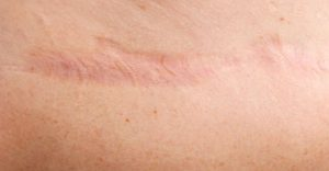 Eliminar cicatrices