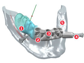 Dientes implantes