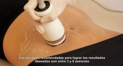 videocelulitis