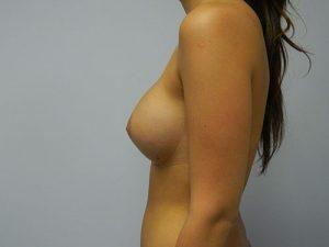 cirugia de pecho - Despues