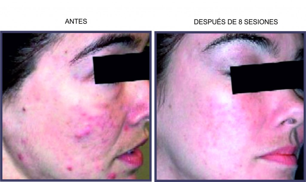 Acné - Beautyflash