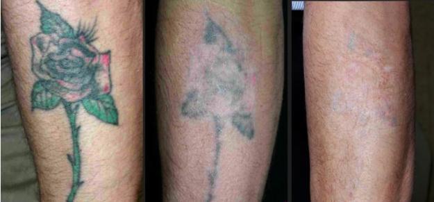 Elimina tu tatuaje con Beautyflash