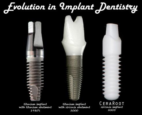Implantes De Zirconio La Mejor Opci 243 N