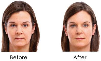 Soft Lift, tratamiento de rejuvenecimiento facial: acido hialurónico y botox